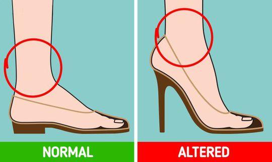 Những tác hại của việc đi giày cao gót thường xuyên - Ảnh 4.