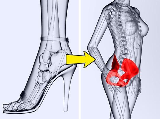 Những tác hại của việc đi giày cao gót thường xuyên - Ảnh 5.
