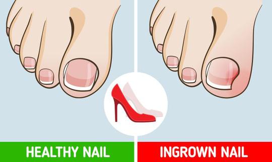 Những tác hại của việc đi giày cao gót thường xuyên - Ảnh 6.