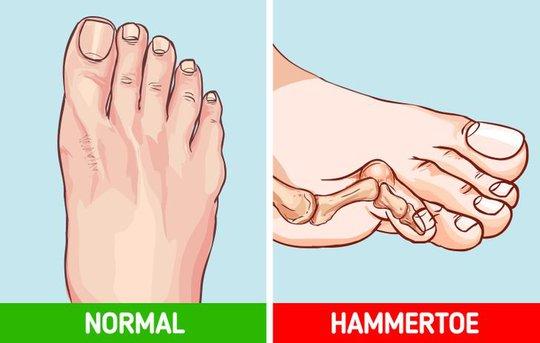 Những tác hại của việc đi giày cao gót thường xuyên - Ảnh 7.