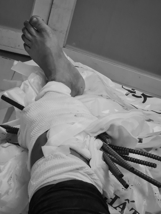 Giải cứu thanh niên bị 11 thanh sắt từ xe ba gác đâm xuyên chân - Ảnh 1.