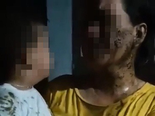 ĐBQH Phạm Thị Minh Hiền: Đổ chất bẩn lên trẻ 2 tuổi là xâm hại trẻ em nghiêm trọng - Ảnh 1.