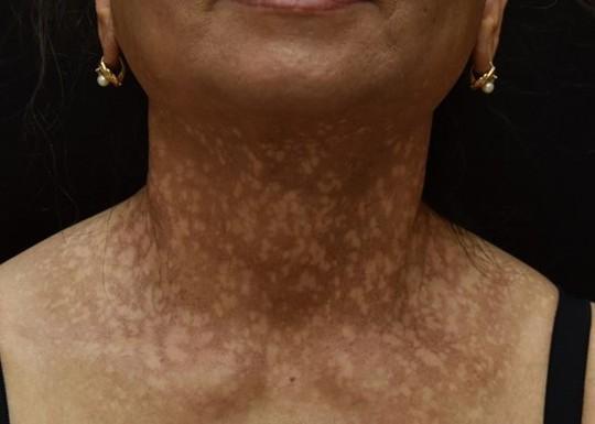 Người phụ nữ mắc bệnh hiếm gặp, đột nhiên rụng tóc, sạm da - Ảnh 1.