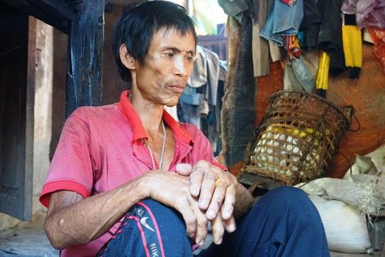 Người rừng Hồ Văn Lang suy kiệt vì bị ung thư giai đoạn cuối - Ảnh 1.