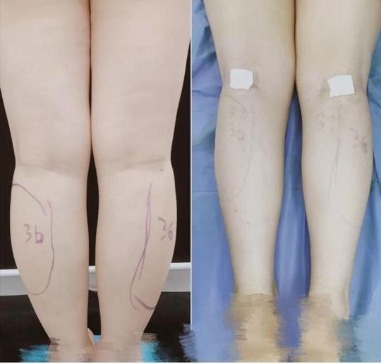 Cắt dây thần kinh để làm chân thon - phương pháp làm đẹp rùng rợn của giới trẻ - Ảnh 3.