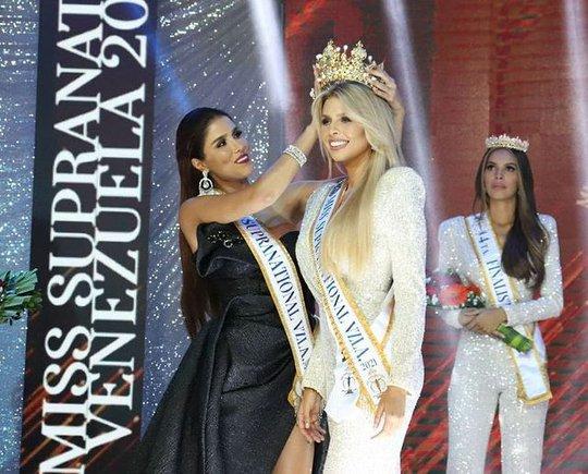 Cận cảnh nhan sắc tân Hoa hậu Siêu quốc gia Venezuela - Ảnh 1.