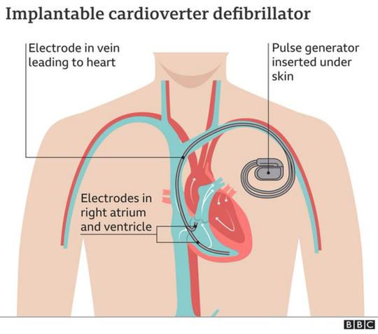Ngôi sao Christian Eriksen sẽ được cấy máy kích tim - Ảnh 2.