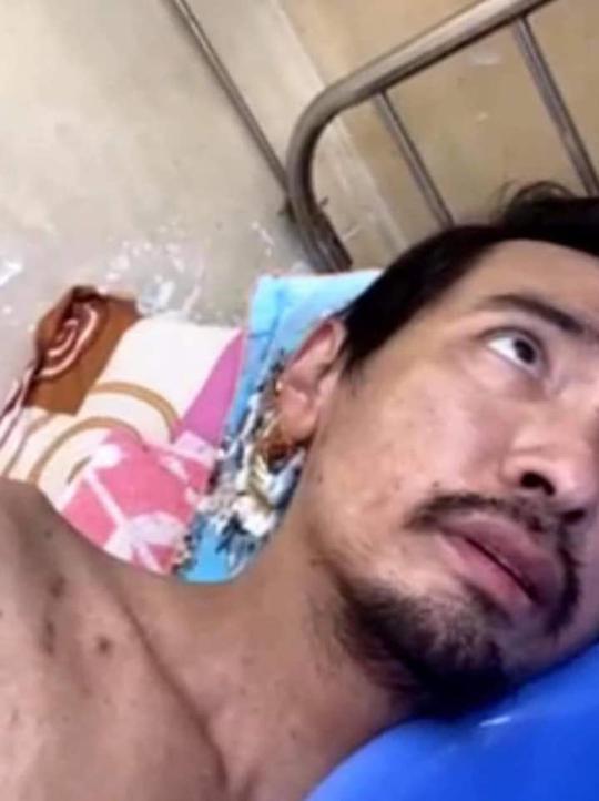 Ca sĩ Việt Quang bị viêm phổi nặng, sụt cân đến xót xa - Ảnh 2.