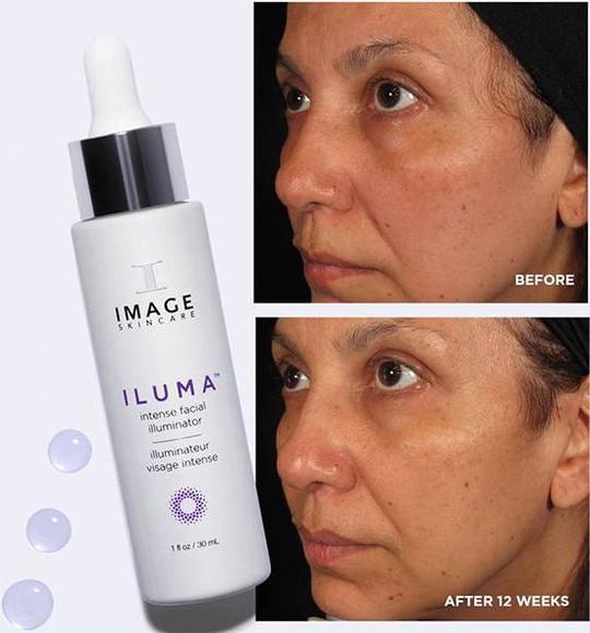 Hướng dẫn sử dụng serum trị nám Image Iluma Intense Facial Illuminator đạt hiệu quả trị nám tận gốc - Ảnh 2.