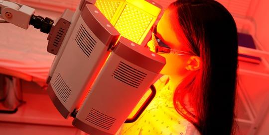 Bệnh nhân nhiều mụn được điều trị bằng quang động học có thoa hoạt chất từ Hàn Quốc - Ảnh 1.