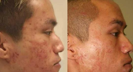 Bệnh nhân nhiều mụn được điều trị bằng quang động học có thoa hoạt chất từ Hàn Quốc - Ảnh 2.