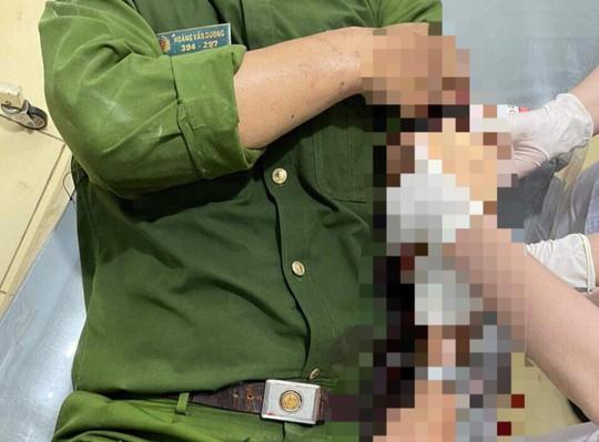 Không mang khẩu trang phòng dịch còn chém công an viên bị thương - Ảnh 2.