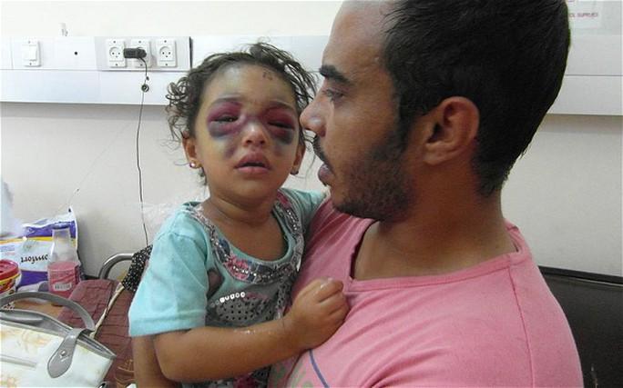 Bé Naama bị thương nặng ở vùng mặt