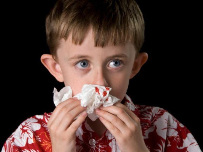 Nguyên nhân khiến bạn chảy máu mũi