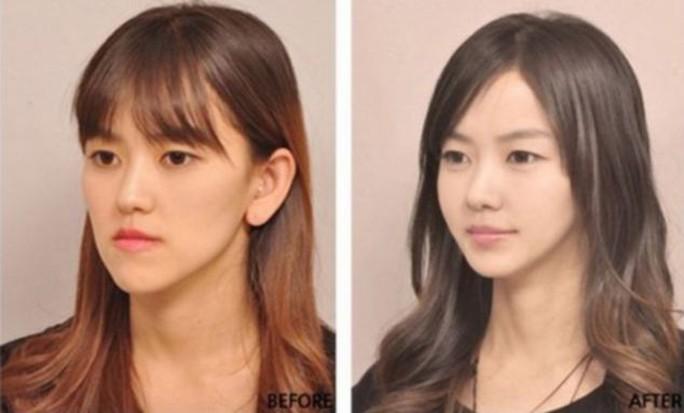 Cắt mí, nâng mũi là những ca phẫu thuật được bác sĩ Hàn Quốc thực hiện nhiều nhất