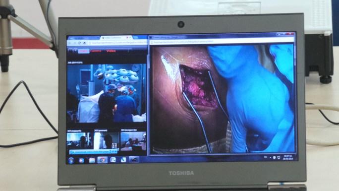 Một ca phẫu thuật khớp háng được truyền ra trực tiếp từ phòng mổ của Bệnh viện Nhân dân 115 qua hệ thống sáng ngày 28-3