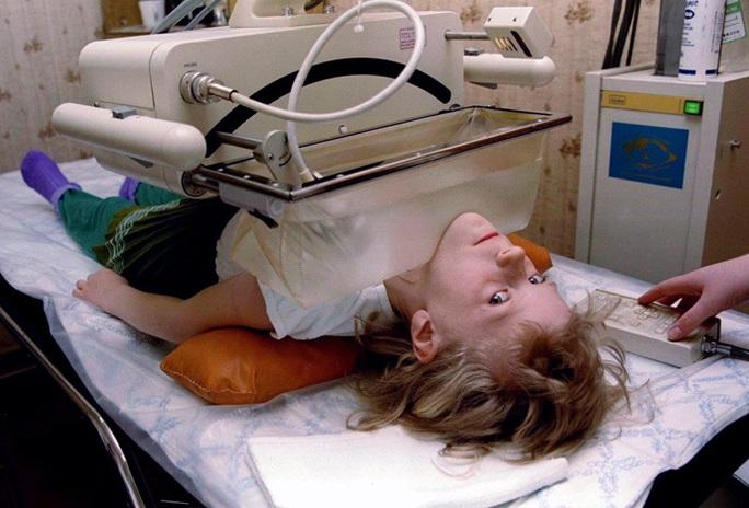 Bé gái Olga Derzhutskaya, 6 tuổi bị ung thư do ảnh hưởng của thảm họa (ảnh chụp năm 1996). Ảnh: Reuters
