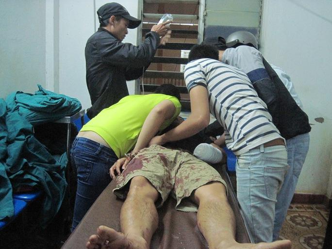 1 thanh niên bị hơn 20 người truy sát, chém lìa tay