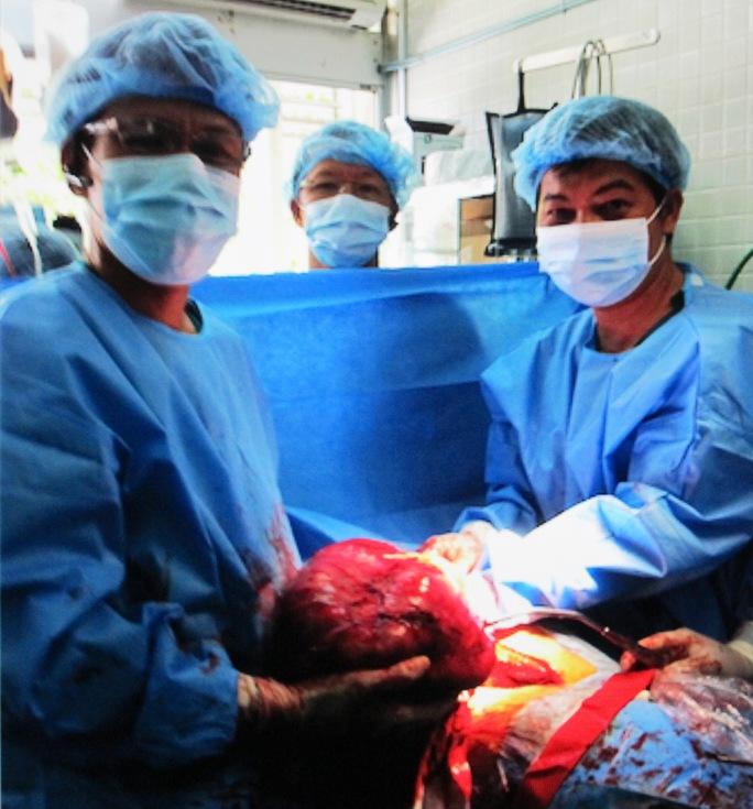 Ê kíp bác sĩ trong ca bóc tách khối u 4,5 kg