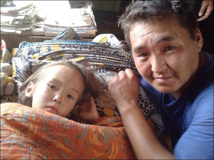 Cô bé may mắn không bị thương và vẫn còn tỉnh táo. Ảnh: SakhaPress