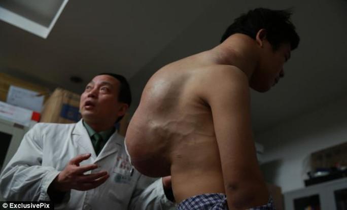 Khối u trên lưng anh Yang có chiều dài lên đến 45 cm, chiều ngang 30 cm và dày tới 17 cm