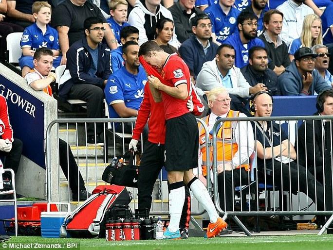 Jonny Evans sẽ vằng mặt vì chấn thương gặp phải trong trận thua Leicester hồi tuần qua