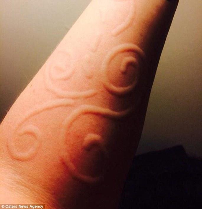Beal có làn da nhạy cảm đến mức có thể làm nổi hình vẽ trên da và rồi tự biến mất sau vài tiếng