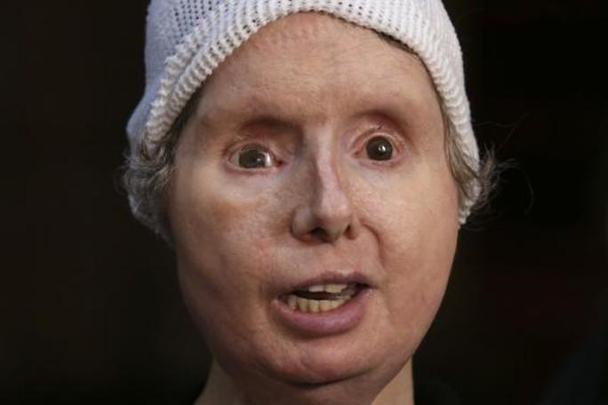 Bà Charla Nash phát biểu tại Văn phòng pháp lý bang Connecticut sau khi đã được cấy ghép mặt. Ảnh: Reutes