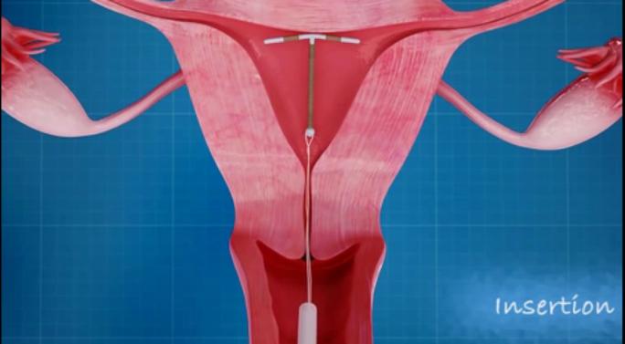 Hoại tử ruột vì vòng tránh thai 32 năm trong ổ bụng