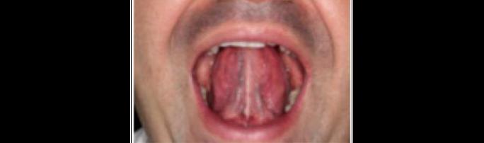 6 bài tập miệng giúp giảm chứng ngủ ngáy