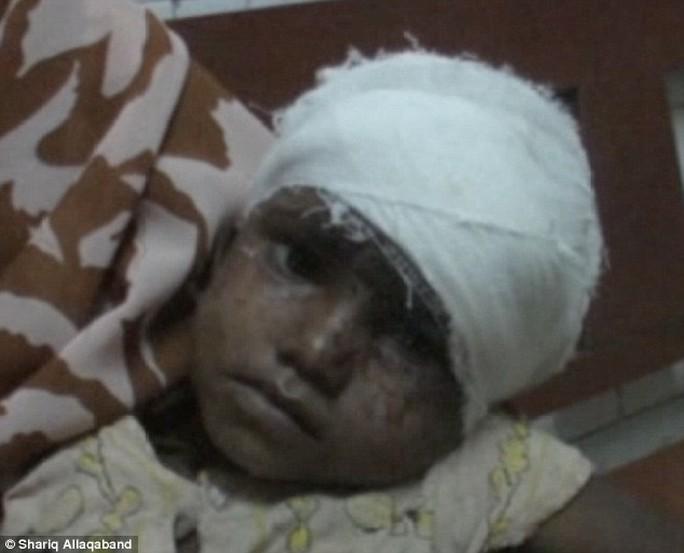 Cô bé Bharati Mondal trong bệnh viện. Ảnh: Daily Mail