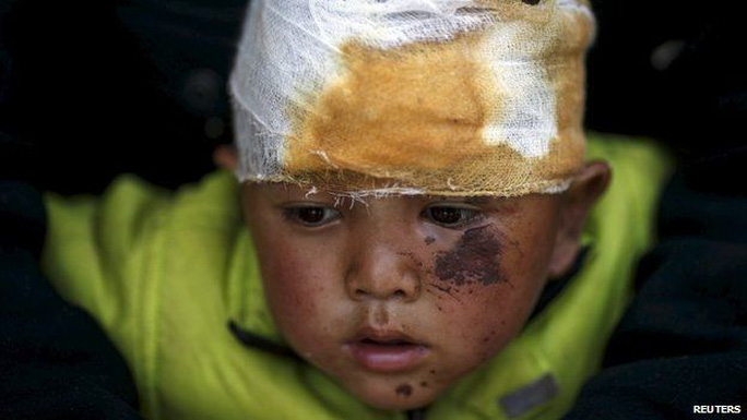 Abhishek Tamang, 4, looks on after receiving medical treatment, following Saturdays earthquake, at Dhading hospital, in Dhading Besi, Nepal April 27, 2015.