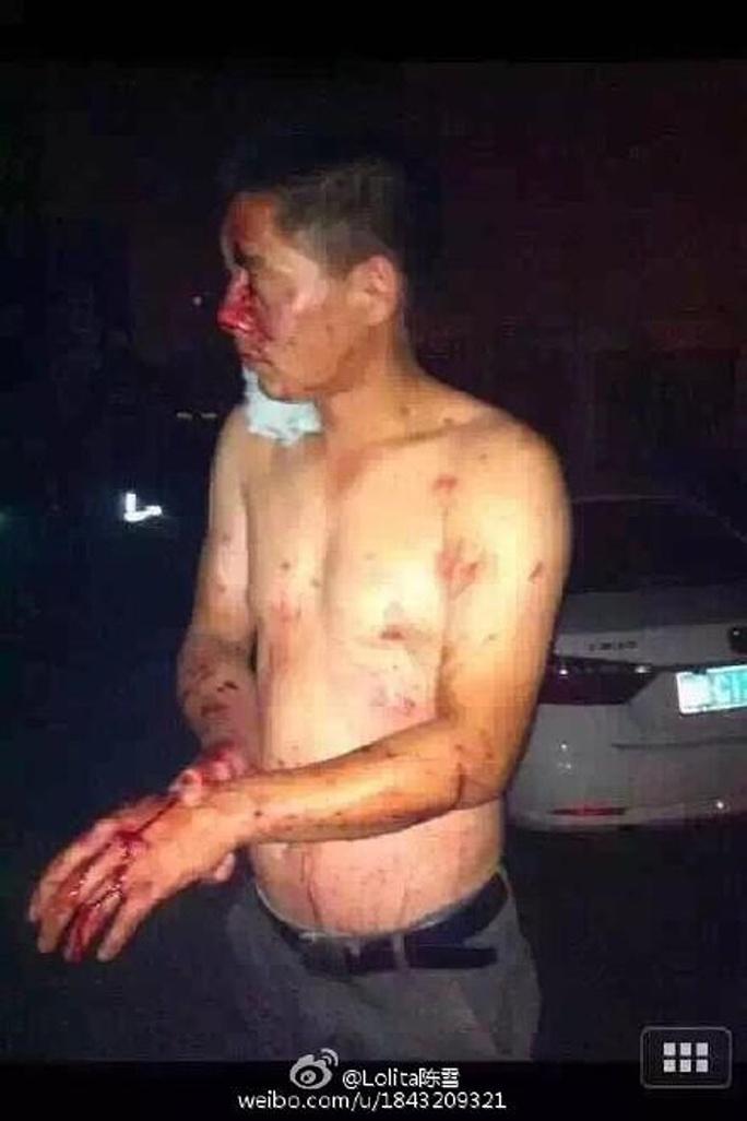 Một người bị thương. Ảnh: Weibo
