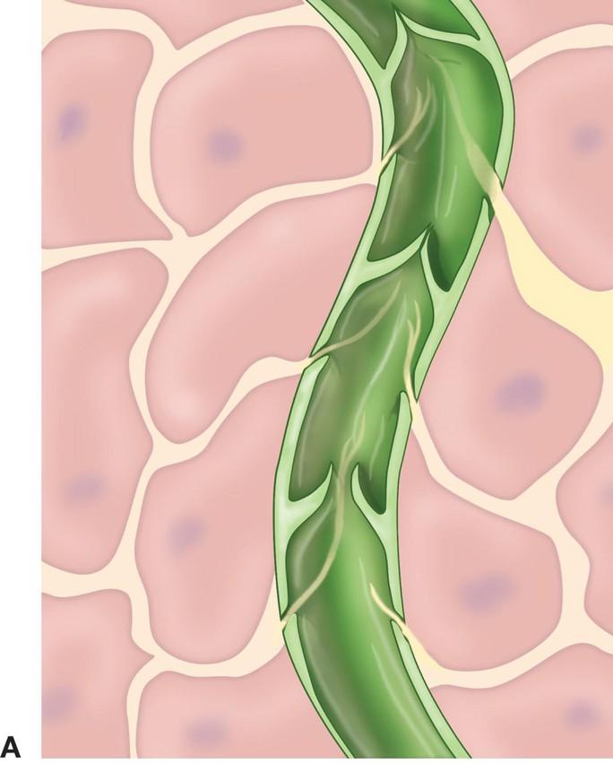 Hình minh họa mạch bạch huyết Ảnh: BIOLOGY-FORUMS