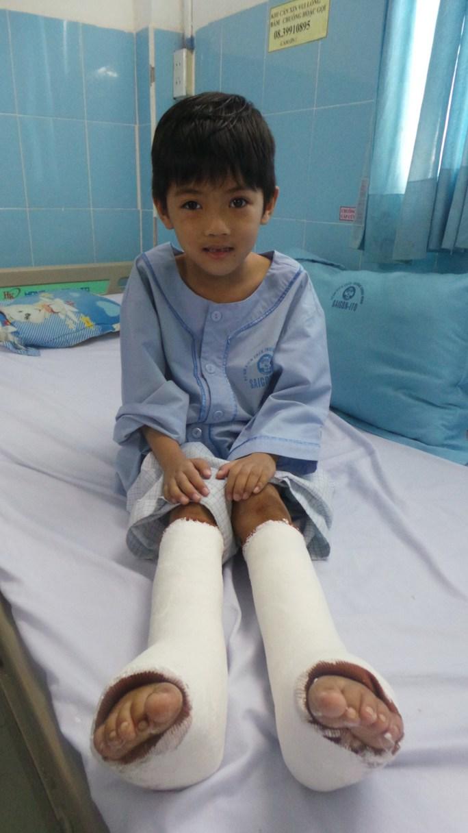 """Đục xương, xếp lại gân cơ cứu đôi chân """"dị thường"""" cho bé gái bị bỏ rơi"""