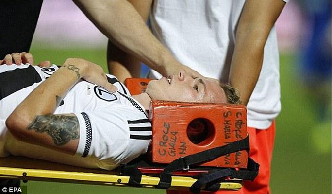 Tiền vệ Legia - Ondrej Duda - được đưa ra khỏi sân sau khi bị thương vì một hòn đá trong trận Legia gặp Kukesi hồi tháng trước
