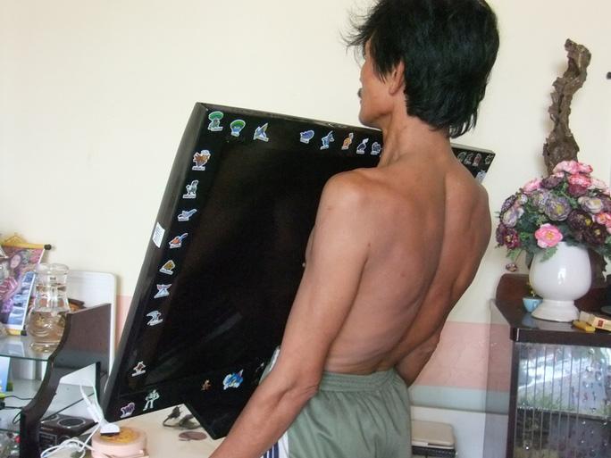 Dao, ti vi và cả khung tranh cũng đều dính chặt vào thân thể anh Khải.