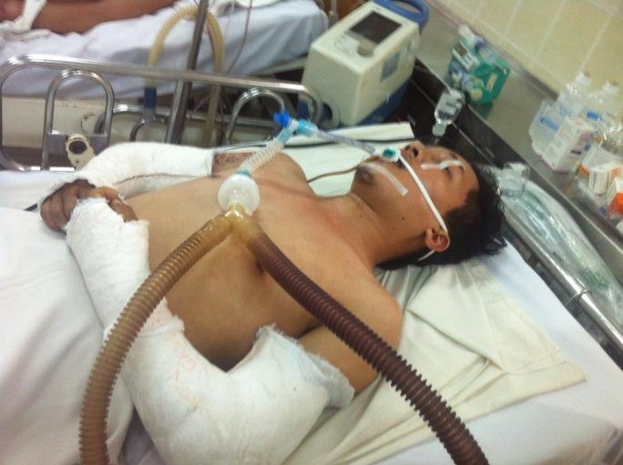 Diễn viên Nguyễn Giàu đang điều trị tại Bệnh viện Chợ Rẫy trong tình trạng đa chấn thương nặng  Ảnh: Susu Trần