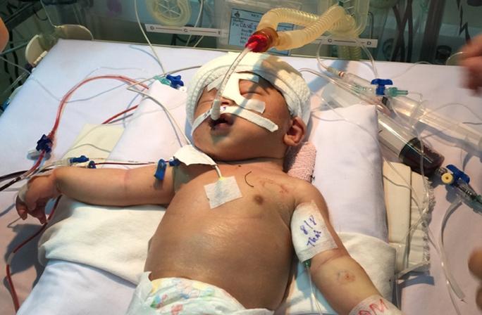 Cháu bé con chị Duyên đã được các bác sĩ tại Bệnh viện Nhi đồng 1 mổ lấy hung khí ra. Ảnh: ngoisao.net