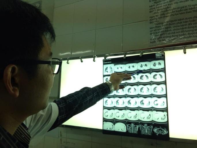 Phim chụp X-quang của bệnh nhân N.T.D