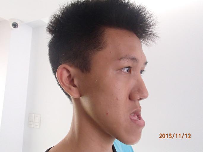 Bệnh nhân trước phẫu thuật, hàm dưới dài hơn hàm trên 1,7 cm.