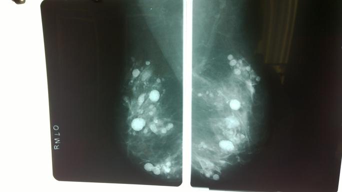 Hàng trăm khối u do silicon vón cục trong bầu ngực bệnh nhân.