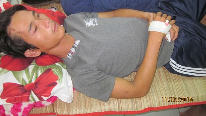 Anh Út đang nằm điều trị tại Bệnh viện Đa khoa Trà Vinh