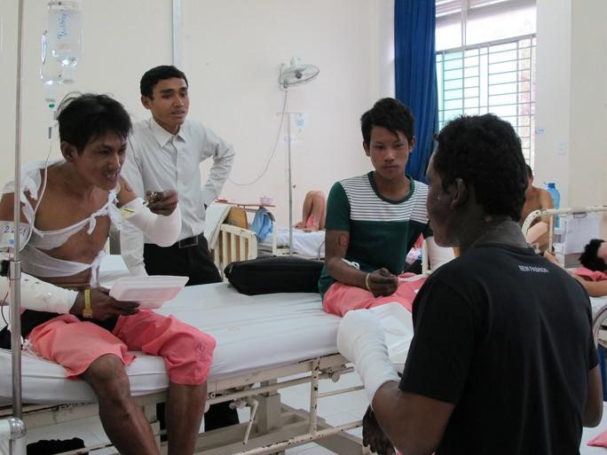 3 công nhân bị phỏng nhẹ, 2 người khác vẫn đang được chăm sóc đặc biệt