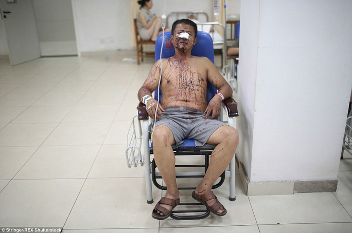 Một người bị thương được điều trị tại bệnh viện Ảnh: REX Shutterstock