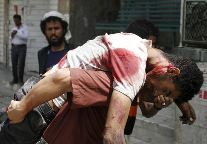 Một người bị thương trong cuộc tấn công giữa dân quân địa phương và phiến quân Houthi hôm 26-4. Ảnh: Reuters