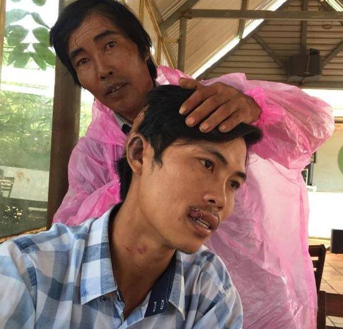 Nhiều vết thương ở miệng, tai, cổ của ông Sang
