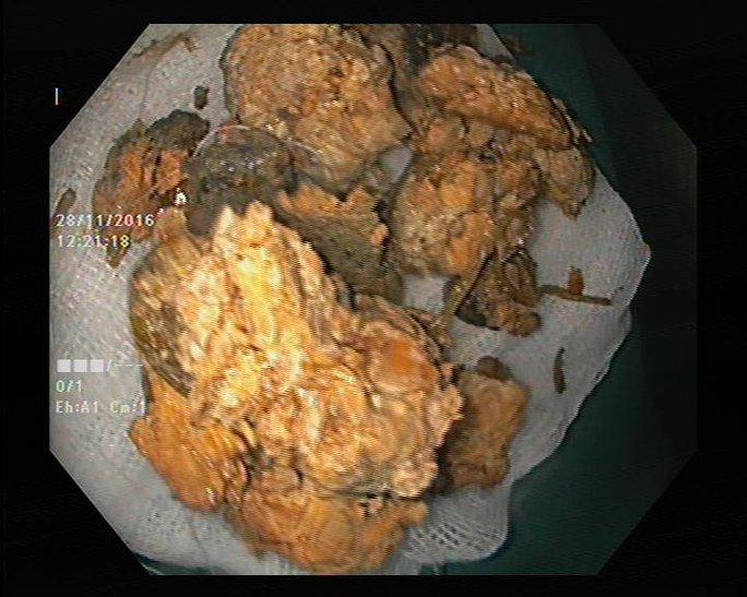 Hình ảnh khối bã thức ăn trước và sau khi phẫu thuật