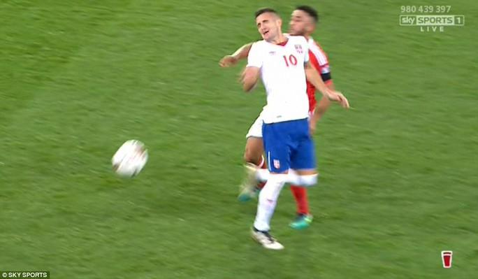 Đổ máu mũi, cầu thủ Serbia vẫn chơi hết trận