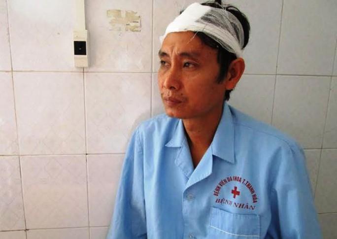 Anh Thiều Văn Hùng bị đánh nhập viện khi vừa từ nhà máy về